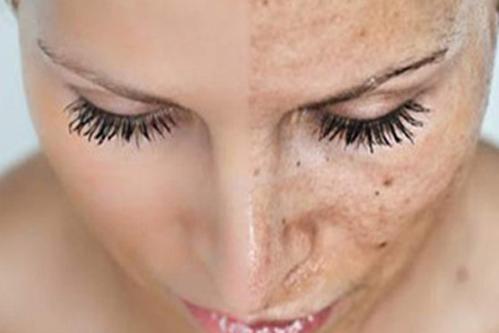皮肤基因检测